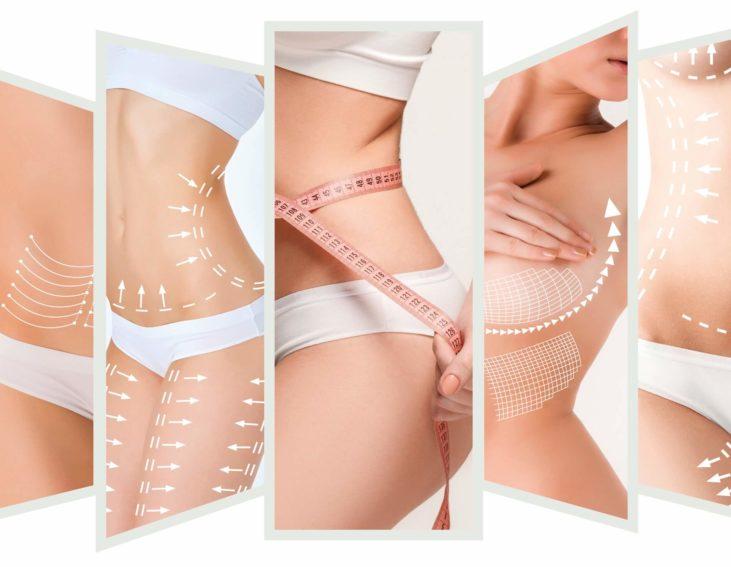 Les différentes liposuccions possibles sur le corps
